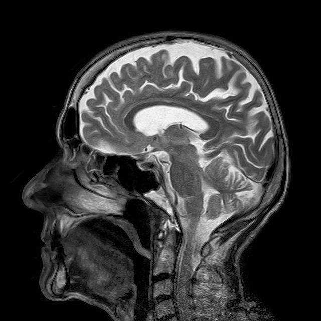 דיקור סיני MRI