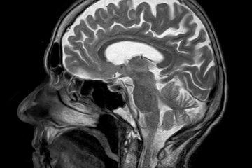 איך דיקור סיני משפיע על המוח האנושי?